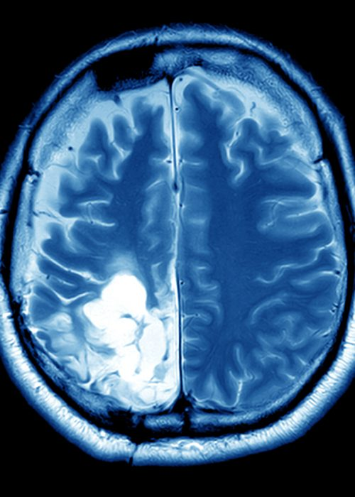 MRI scan image of brain for diagnosisImaging of the brain on mri scan